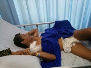 Alfonso Peter Situmeang, hanya bisa terbaring usai operasi